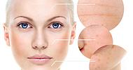 promo_acne_paket